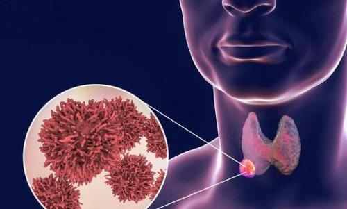 甲状腺癌6个表现有哪些