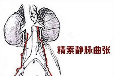 精索静脉曲张的症状与危害有哪些