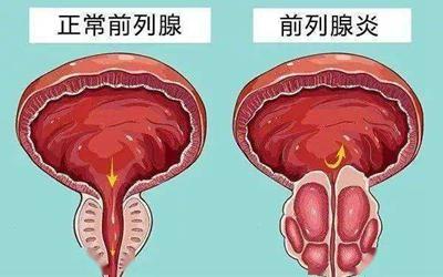 男性生殖疾病症状详细介绍