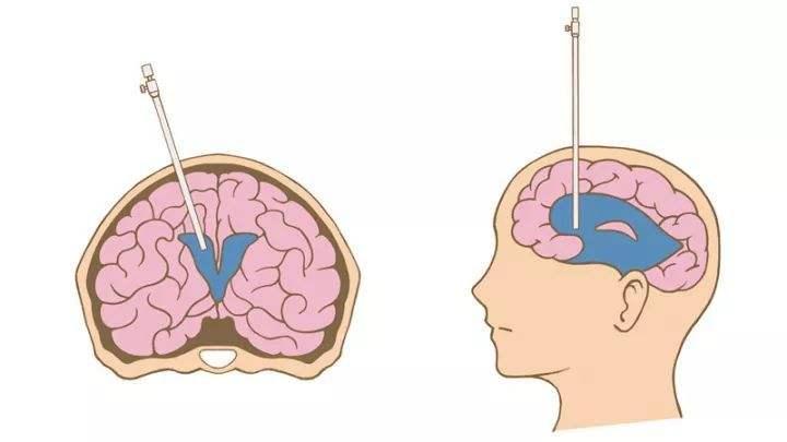 脑积水症状是什么