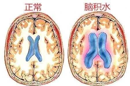 脑积水怎么治疗