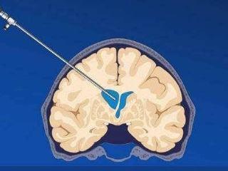 脑积水怎么预防