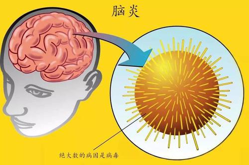脑炎后遗症是什么