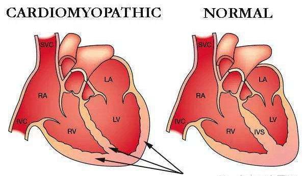 心肌病是怎么回事
