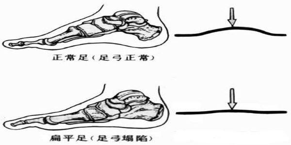扁平足是怎么形成的