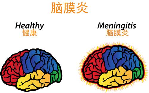 脑膜炎有什么症状