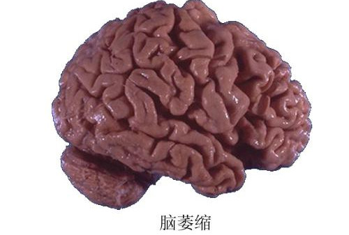 脑萎缩有什么症状