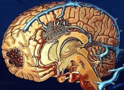 脑膜炎怎么治疗最好