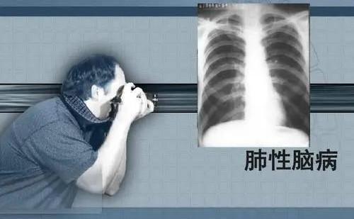 肺性脑病是什么原因引起的