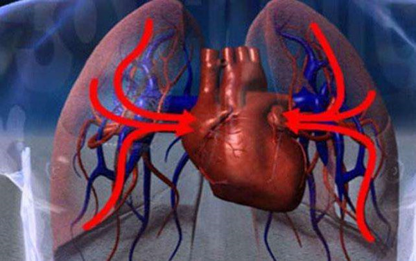 肺性脑病怎么进行护理