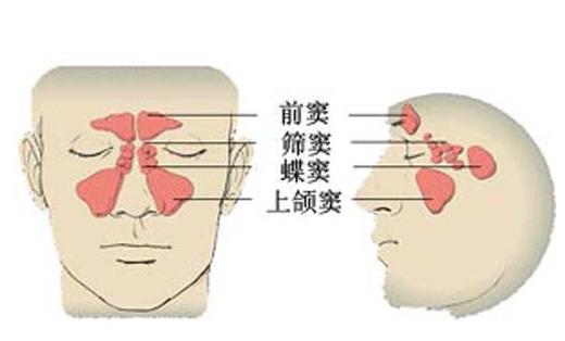鼻窦炎能治好吗