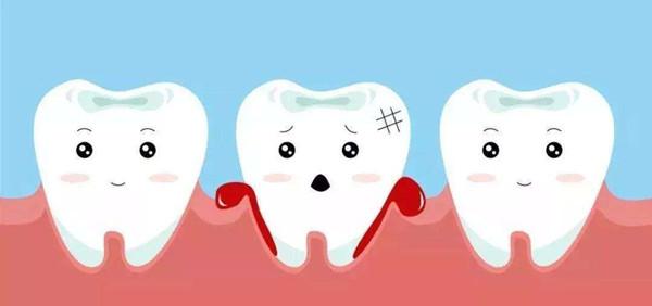 牙周病怎么治疗