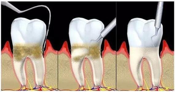 牙周病的症状有哪些
