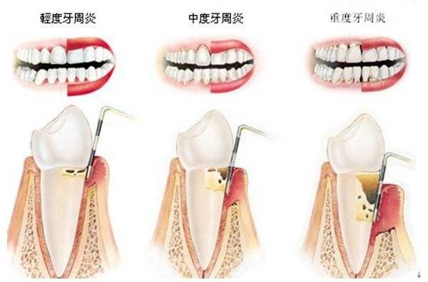 牙周病怎么引起的
