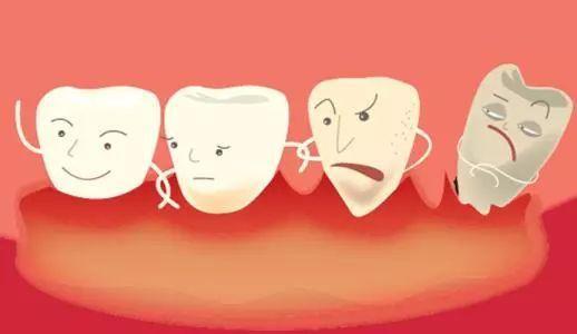 牙周病有哪些