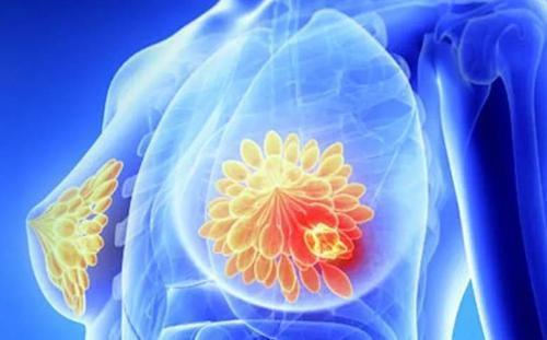 乳腺肿瘤术后怎么护理