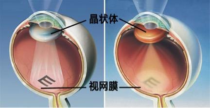 老花眼能治疗好吗
