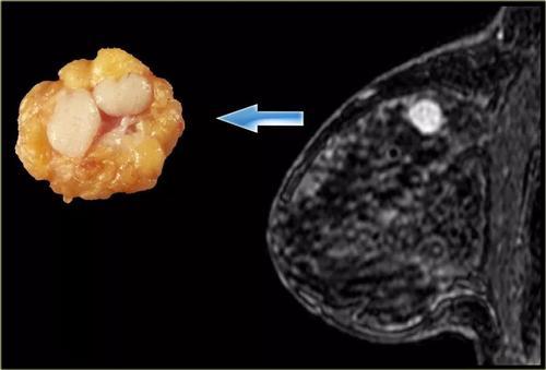 乳腺纤维瘤是怎么引起的