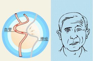 面肌痉挛是什么原因引起的