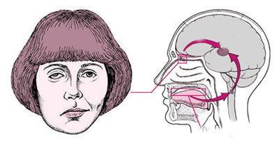 面肌痉挛吃什么药最有效