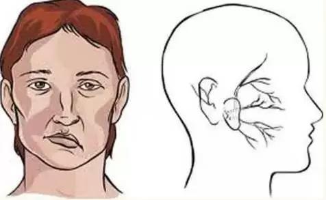 面肌痉挛能治好吗