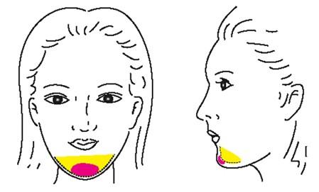 下颌整形的方式有哪些