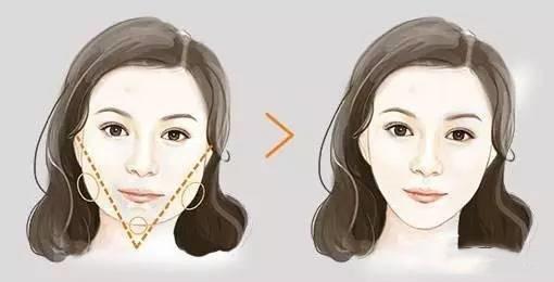 下颌整形术后怎么护理