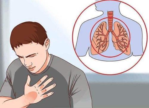 慢性支气管炎有什么危害