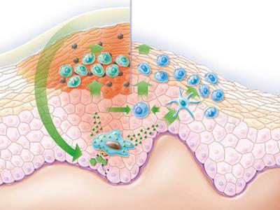 生殖器疱疹挂什么科