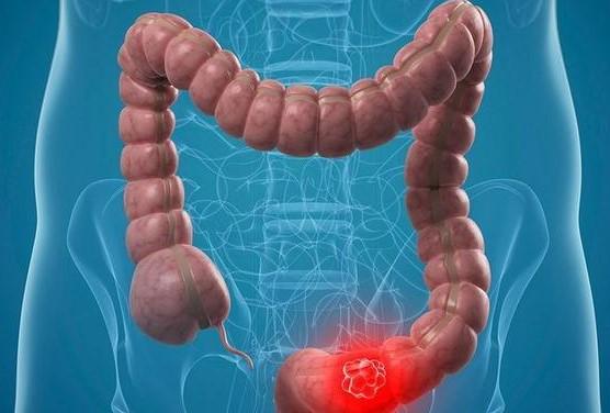直肠炎和直肠癌有什么区别